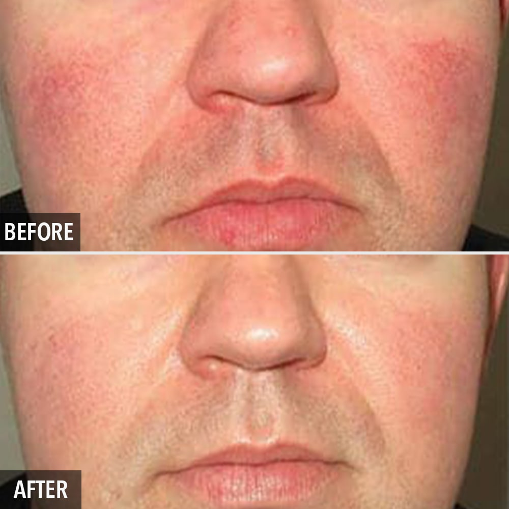 photorejuvenation before and after